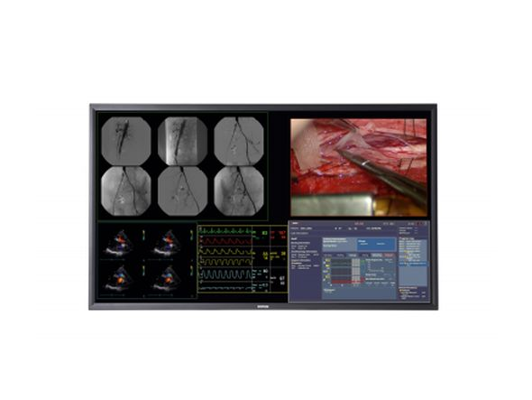 Mit dem MDSC-8258 hat Barco ein neues 4k-Modell für medizinische Anwendungen im Portfolio (Foto: Barco)